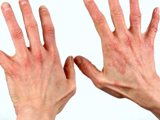 Фото - Дієта при дерматиті