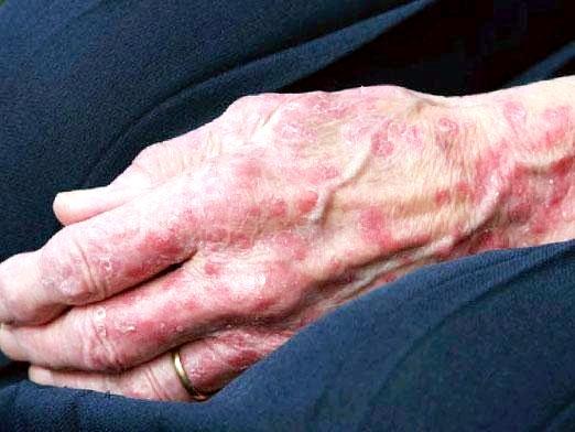 Фото - Як лікувати дерматит?