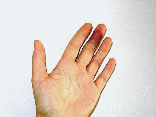 Фото - Як лікувати забій пальця?