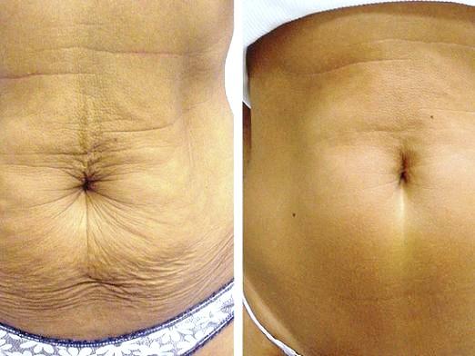Фото - Як підтягнути шкіру після схуднення?