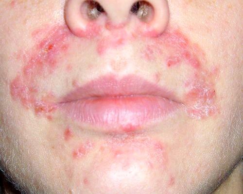 Фото - Як виглядає дерматит