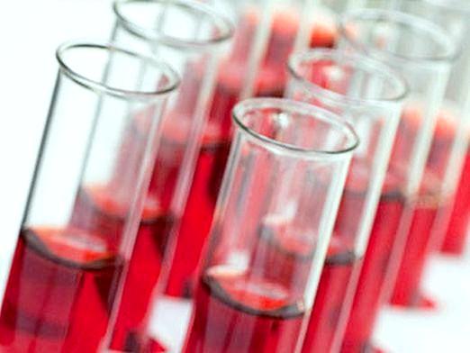 Фото - Які є аналізи крові?