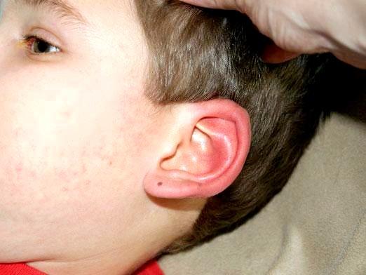 Фото - Чому горять вуха?