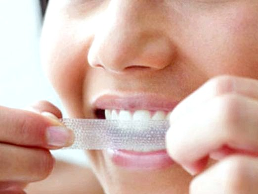 Фото - Чи шкідливо відбілювання зубів?