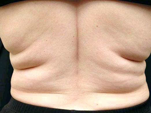 Фото - Як прибрати жир зі спини?
