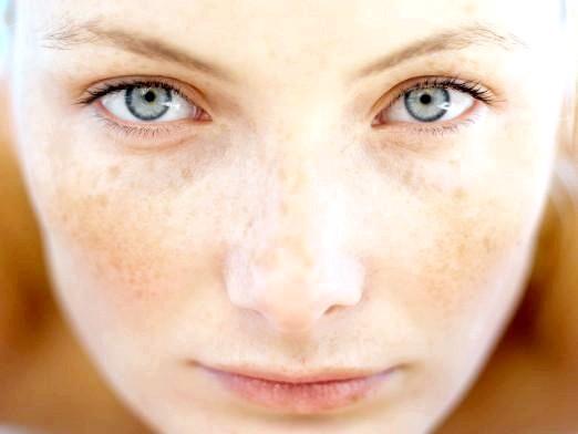 Фото - Від чого плями на обличчі?