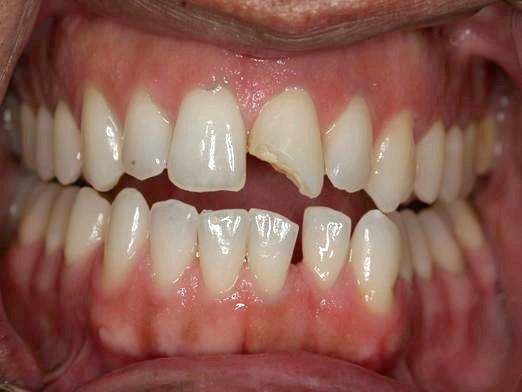 Фото - Відколовся зуб, що робити?