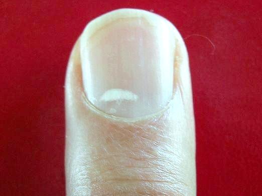 Фото - Чому білі плями на нігтях?