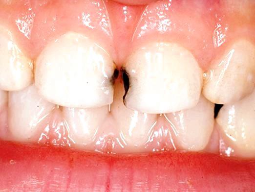 Фото - Чому чорніють зуби?
