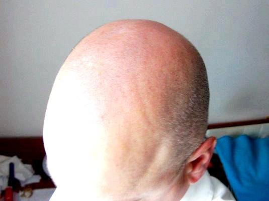 Фото - Чому не росте волосся?
