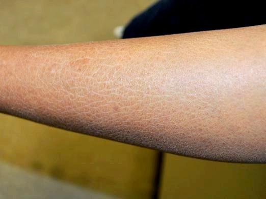 Фото - Чому лущиться шкіра?