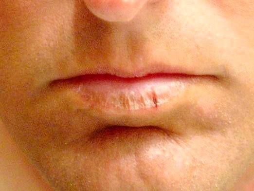 Фото - Чому сохнуть губи?