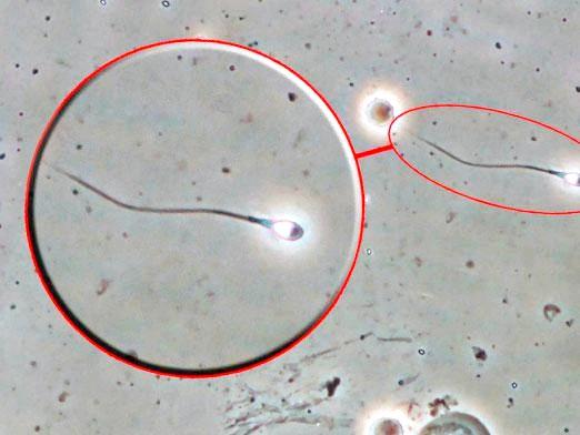 Фото - Скільки живе сперматозоїд?