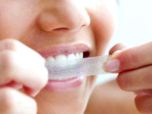 Фото - Чим можна відбілити зуби?
