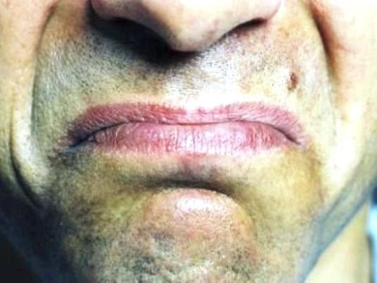 Фото - Що означає присмак у роті?