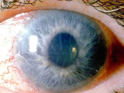 Фото - Що таке глаукома?