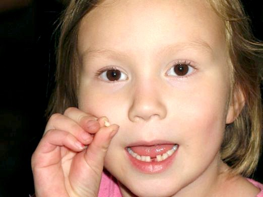 Фото - Що робити, якщо хитаються зуби?