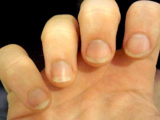 Фото - Що робити, якщо шаруються нігті?