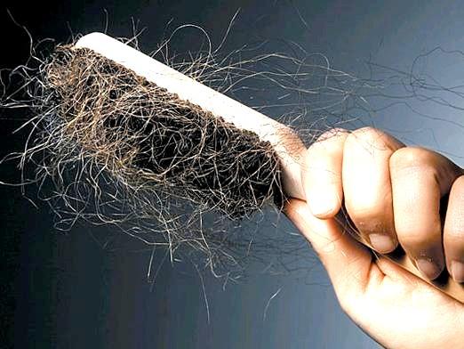 Фото - Що робити, коли випадає волосся?