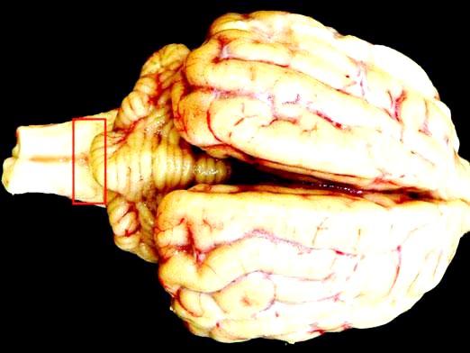 Фото - Що таке енцефалопатія?