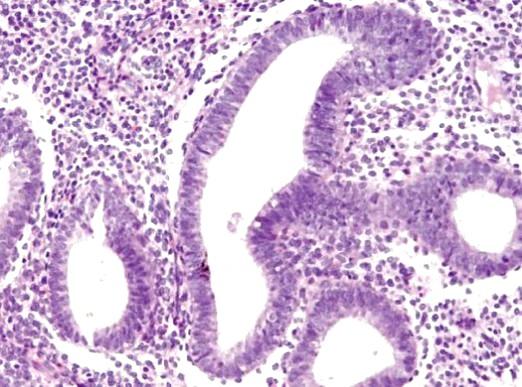Фото - Що таке ендометрій?