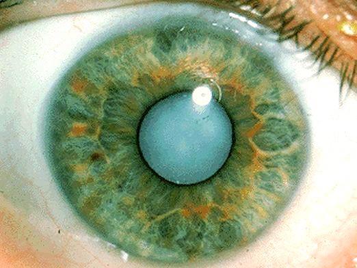Фото - Що таке катаракта?