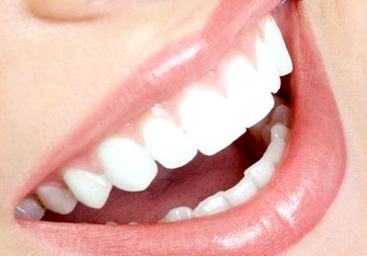Фото - Що таке рот?