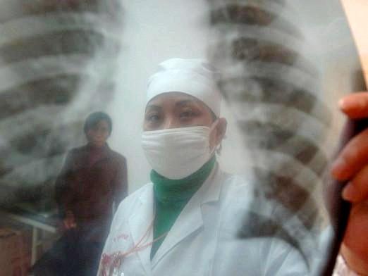 Фото - Що таке туберкульоз?